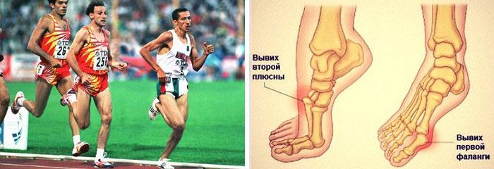 Болит большой палец на ноге при сгибании