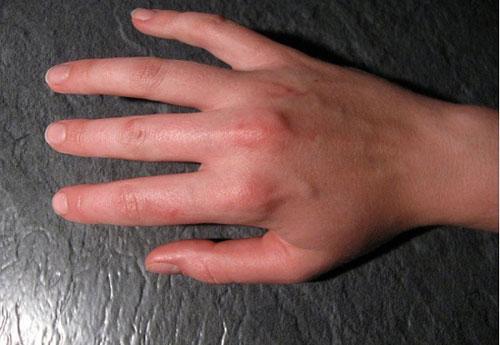 Возможные причины сильных болей в суставах