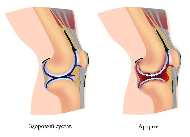 Обострение артроза коленного сустава лечение