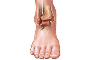 Борьба с артритом