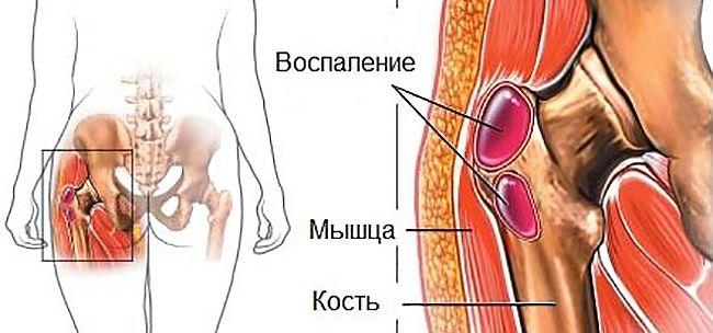 Артрит тазобедренного сустава лучшие методы лечения и симптомы