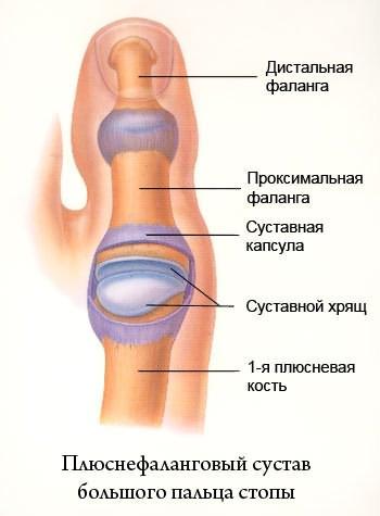 Как вылечить остеоартроз стопы советы врача