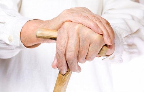 артроз лучезапястной руки