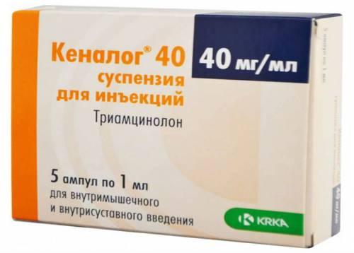 Инъекции кеналога в суставах 85