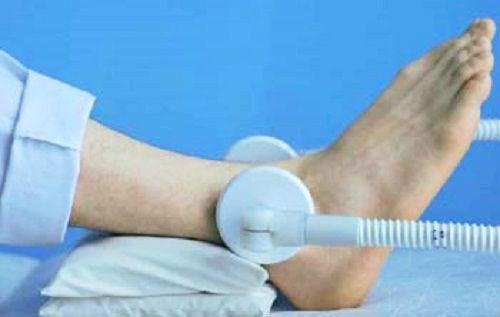 Боль в стопе причины острой боли в стопе (без травмы)